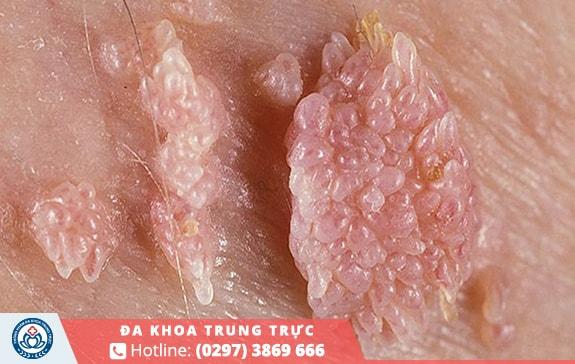 Bệnh sùi mào gà phổ biến xuất hiện nhất khi lây lan qua con đường tình dục