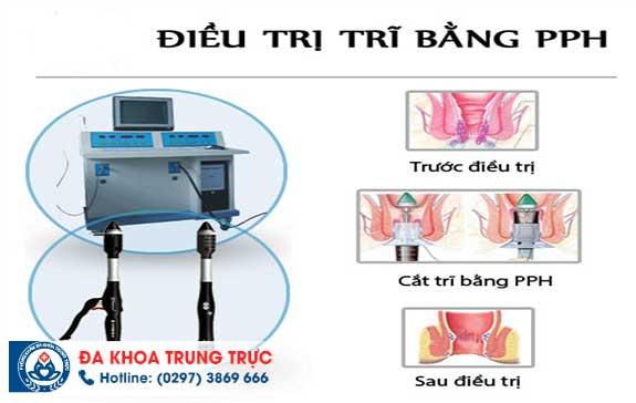 dieu tri benh tri cho phu  nu mang thai tai da khoa trung truc