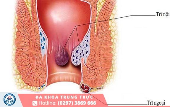 Trĩ là nguyên nhân phổ biến gây nên tình trạng đi cầu ra máu