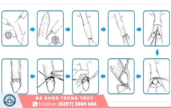 Quy trình cắt bao quy đầu diễn ra nhanh chóng và an toàn