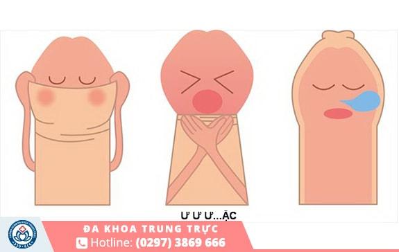 Vần đề về bao quy đầu là nguyên nhân phổ biến gây xuất tinh sớm