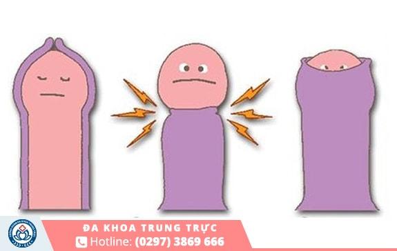 Dài hẹp bao quy đầu khiến nam giới bị giảm sức khỏe sinh lý