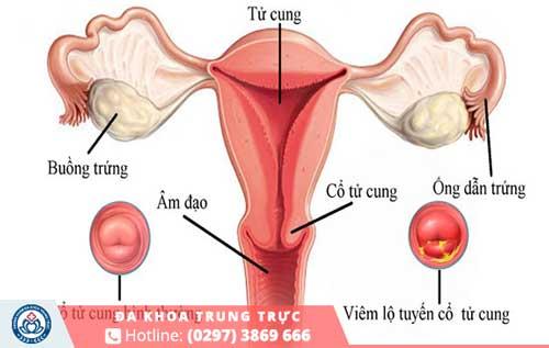 Các dấu hiệu nhận biết viêm lộ tuyến cổ tử cung là gì?