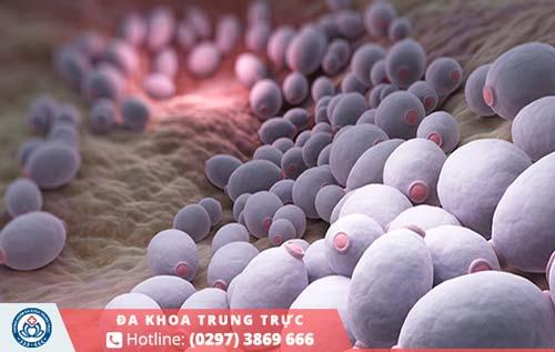 Viêm phụ khoa từ nấm men hay các vi khuẩn gây lại là nguyên nhân phổ biến