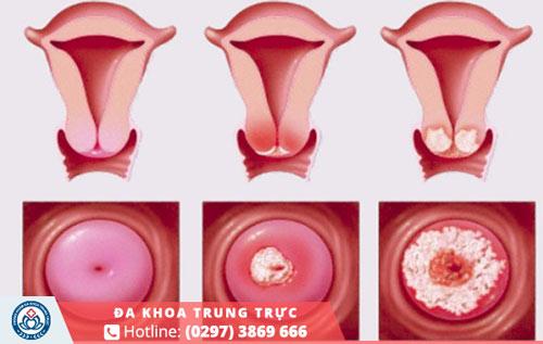 Việc không chữa trị sẽ khiến tử cung bị viêm loét và nhiễm trùng trầm trọng