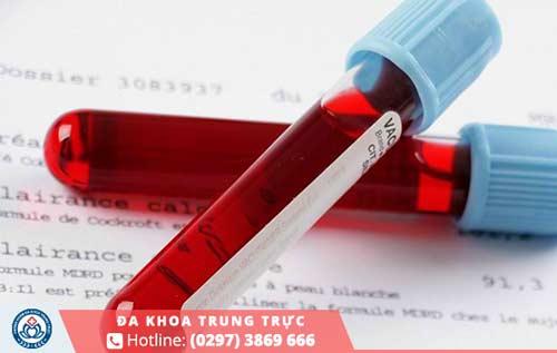 Xét nghiệm máu biết có thai hết bao nhiêu tiền