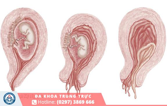 Sảy thai cũng là nguyên nhân gây đau bụng dưới