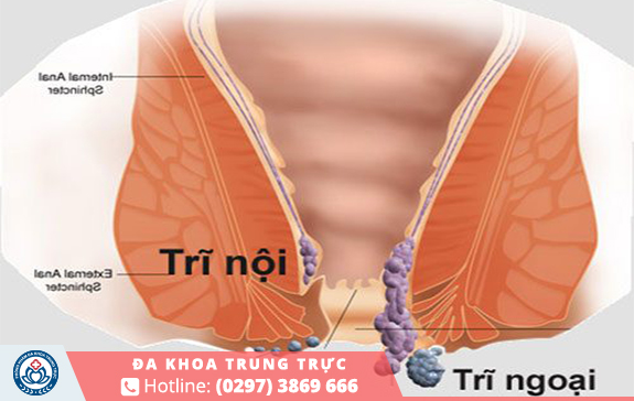 Hình ảnh của bệnh trĩ nội và trĩ ngoại