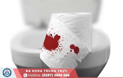 Đi ngoài ra máu khám ở đâu an toàn và uy tín tại Kiên Giang?