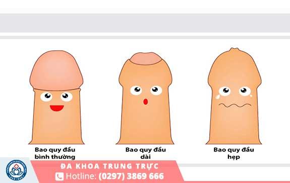 Bao quy đầu bị dài hẹp là nguyên nhân phổ biến gây xuất tinh sớm