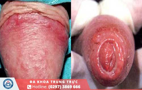 Dài bao quy đầu là nguyên nhân phổ biếngây viêm nhiễm quy đầu