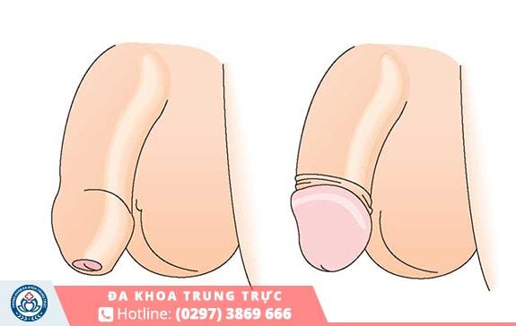 Dài hẹp bao quy đầu cũng là nguyên nhân phổ biến gây xuất tinh sớm