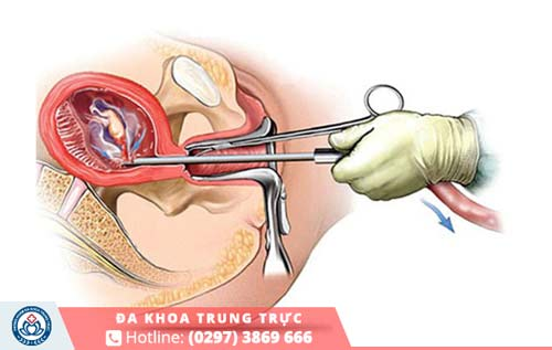 Phòng khám luôn áp dụng các phương pháp phá thai 3 tháng hiện đại và tiên tiến