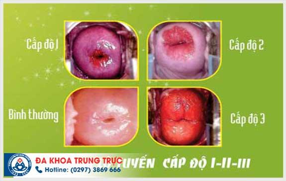 truong hop khong nen dat vong tranh thai
