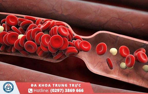 Quá trình lưu thông máu bị ảnh hưởng gây ra các cơn co thắt