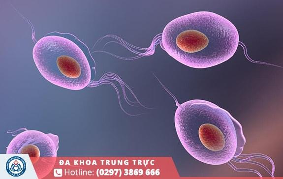 Khí hư màu vàng xanh do nhiễm Trichomonas vaginalis