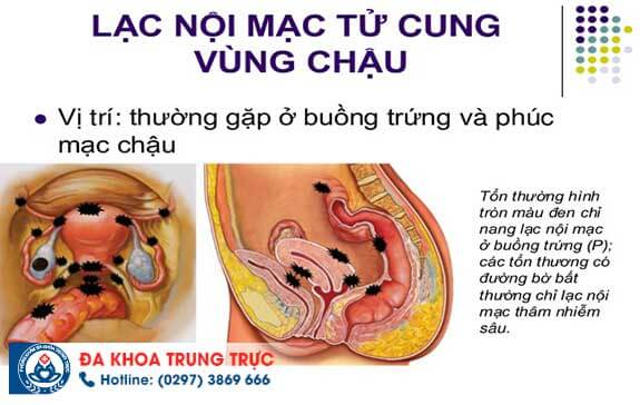 the nao la lac noi mac tu cung