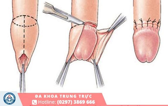 Tiến hành loại bỏ phần da quy đầu an toàn và hiệu quả
